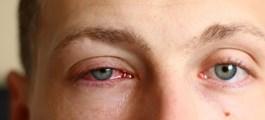 Viện Nhãn khoa Hoa Kỳ: Mắt đỏ nhẹ có thể là dấu hiệu của bệnh nhân nhiễm COVID-19