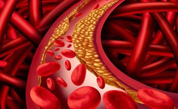 """""""Làm sạch"""" mạch máu: Coi chừng tiền mất tật mang"""