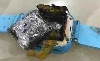 Bé gái 4 tuổi bị bỏng độ 3 vì smartwatch phát nổ trên tay
