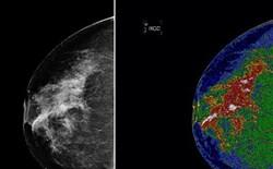 Phát hiện cách ngăn chặn sự phát triển loại ung thư vú phổ biến nhất